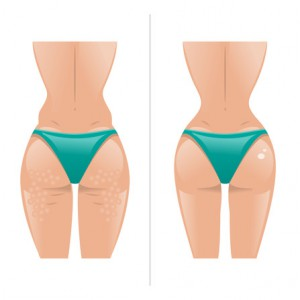 Natural ways to treat cellulite